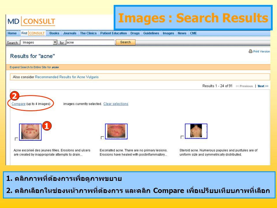 1. คลิกภาพที่ต้องการเพื่อดูภาพขยาย 2. คลิกเลือกในช่องหน้าภาพที่ต้องการ และคลิก Compare เพื่อเปรียบเทียบภาพที่เลือก Images : Search Results 1 2
