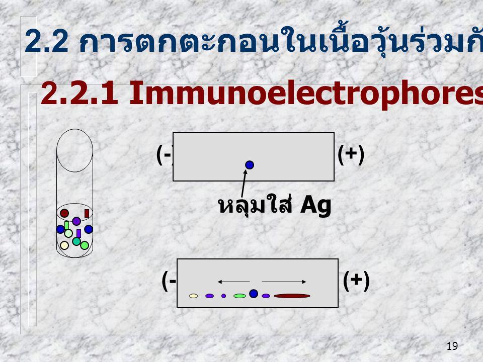 19 2.2 การตกตะกอนในเนื้อวุ้นร่วมกับ electrophoresis 2.2.1 Immunoelectrophoresis (IEP) (-)(+) หลุมใส่ Ag (-)(+)