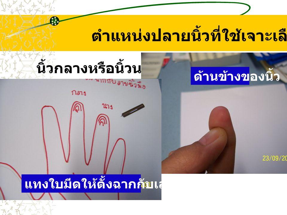 ตำแหน่งปลายนิ้วที่ใช้เจาะเลือด นิ้วกลางหรือนิ้วนาง ด้านข้างของนิ้ว แทงใบมีดให้ตั้งฉากกับเส้นลายมือ