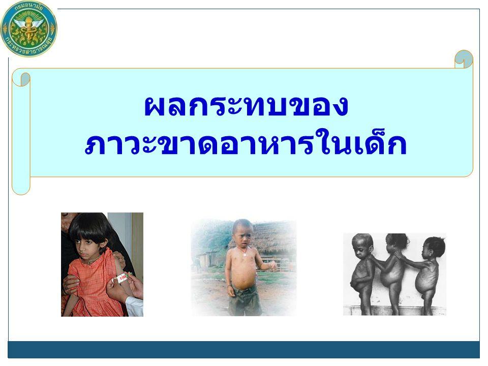 ผลกระทบของ ภาวะขาดอาหารในเด็ก