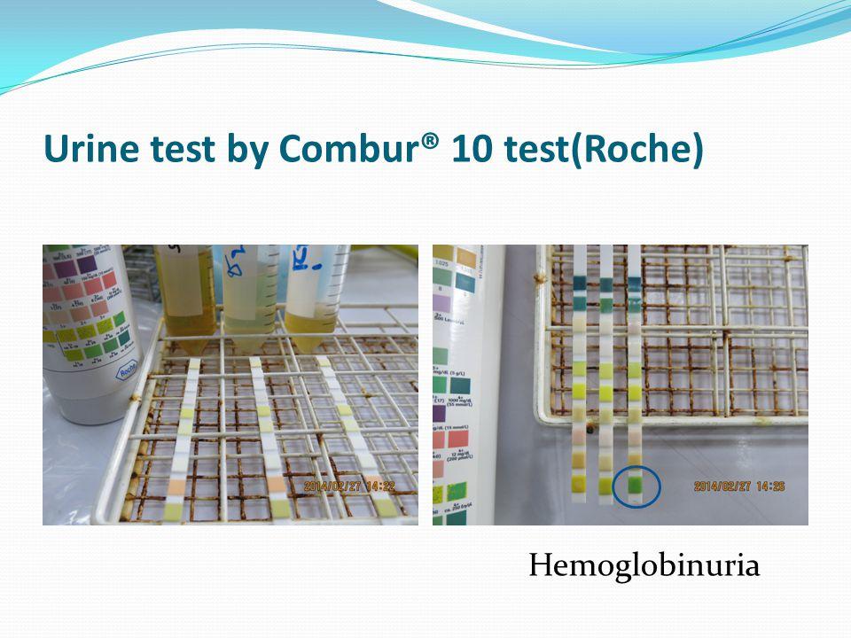 Urine test by Combur® 10 test(Roche) Hemoglobinuria