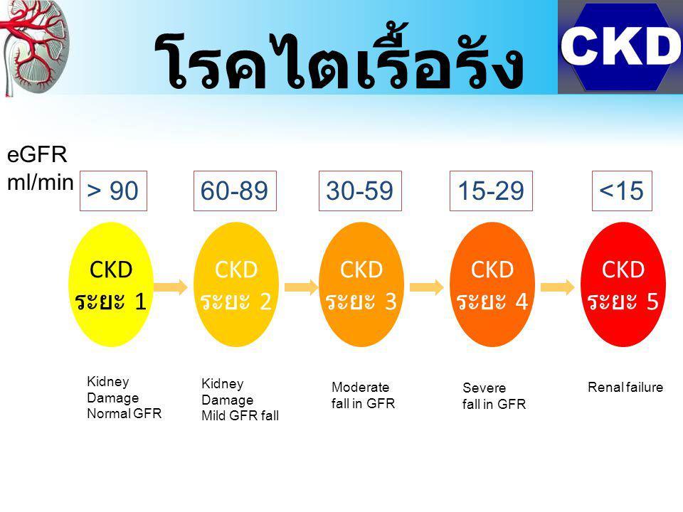 CKD ระยะ 1 CKD ระยะ 2 CKD ระยะ 3 CKD ระยะ 4 CKD ระยะ 5 > 90<1515-2930-5960-89 eGFR ml/min Kidney Damage Normal GFR Kidney Damage Mild GFR fall Moderate fall in GFR Severe fall in GFR Renal failure โรคไตเรื้อรัง