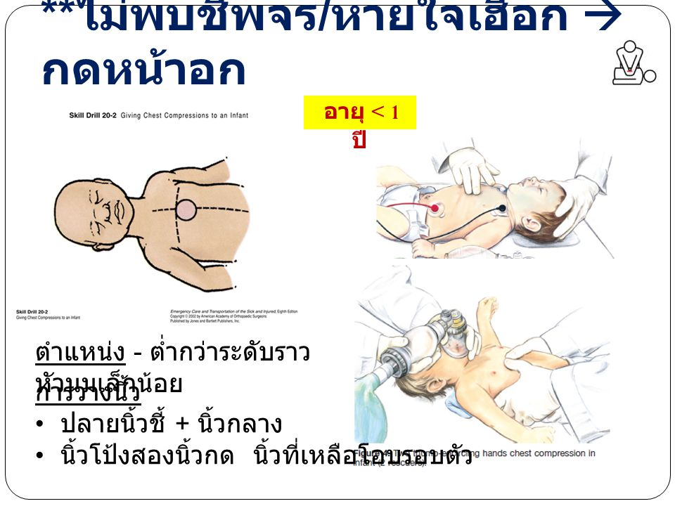 ** ไม่พบชีพจร / หายใจเฮือก  กดหน้าอก อายุ < 1 ปี ตำแหน่ง - ต่ำกว่าระดับราว หัวนมเล็กน้อย การวางนิ้ว ปลายนิ้วชี้ + นิ้วกลาง นิ้วโป้งสองนิ้วกด นิ้วที่เหลือโอบรอบตัว