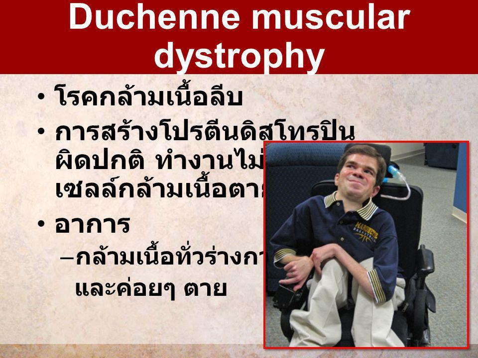โรคกล้ามเนื้อลีบ การสร้างโปรตีนดิสโทรปิน ผิดปกติ ทำงานไม่ได้ ทำให้ เซลล์กล้ามเนื้อตาย อาการ – กล้ามเนื้อทั่วร่างกายลีบ และค่อยๆ ตาย Duchenne muscular