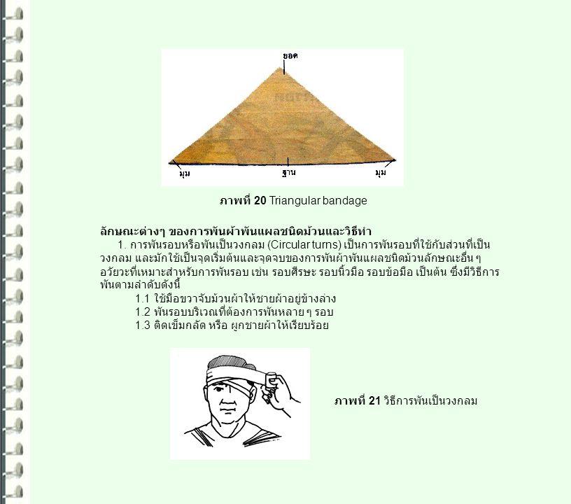 ภาพที่ 20 Triangular bandage ลักษณะต่างๆ ของการพันผ้าพันแผลชนิดม้วนและวิธีทำ 1. การพันรอบหรือพันเป็นวงกลม (Circular turns) เป็นการพันรอบที่ใช้กับส่วนท