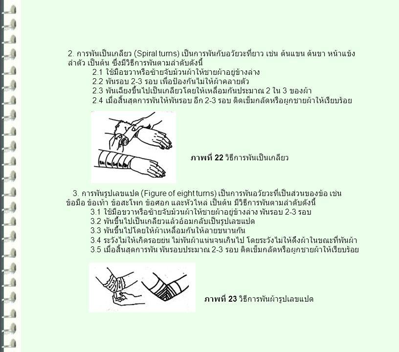 2. การพันเป็นเกลียว (Spiral turns) เป็นการพันกับอวัยวะที่ยาว เช่น ต้นแขน ต้นขา หน้าแข้ง ลำตัว เป็นต้น ซึ่งมีวิธีการพันตามลำดับดังนี้ 2.1 ใช้มือขวาหรือ
