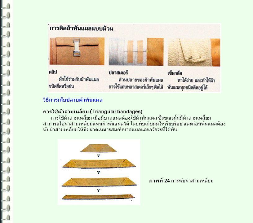 วิธีการเก็บปลายผ้าพันแผล การใช้ผ้าสามเหลี่ยม (Triangular bandages) การใช้ผ้าสามเหลี่ยม เมื่อมีบาดแผลต้องใช้ผ้าพันแผล ซึ่งขณะนั้นมีผ้าสามเหลี่ยม สามารถ