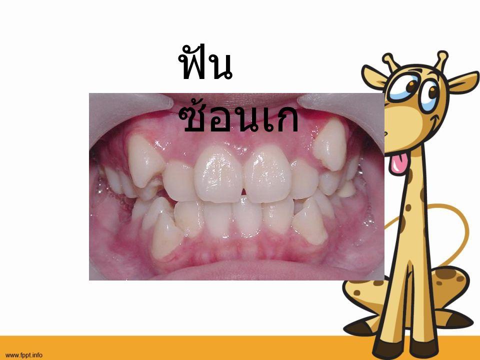 ฟัน ซ้อนเก