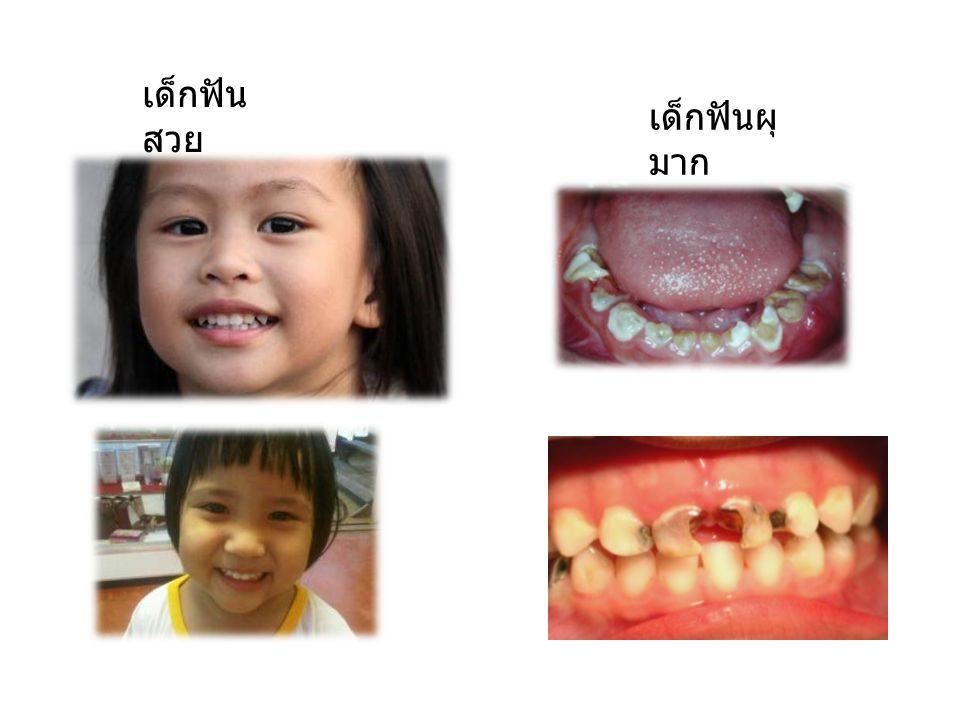 เด็กฟัน สวย เด็กฟันผุ มาก