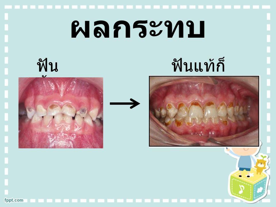ผลกระทบ ฟัน น้ำนมผุ ฟันแท้ก็ จะผุ