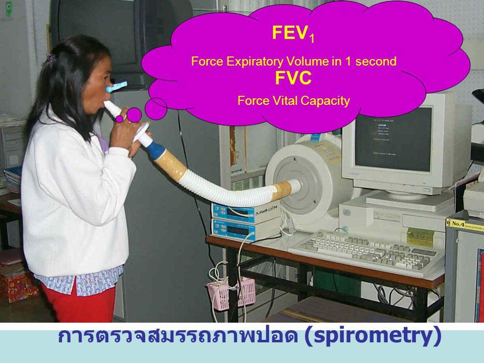 การตรวจสมรรถภาพปอด (spirometry) FEV 1 Force Expiratory Volume in 1 second FVC Force Vital Capacity
