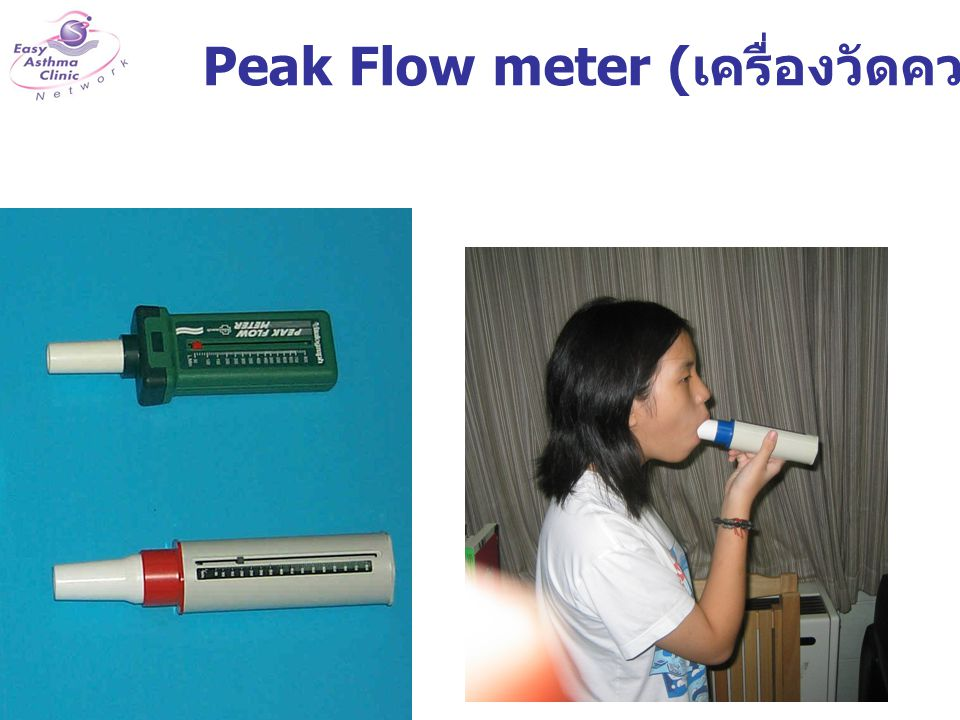 Bronchodilator Test เป่าสมรรถภาพปอด หรือ Peak Flow ก่อนและ หลังพ่นยาขยายหลอดลม 15 นาที FEV1 เพิ่มขึ้นมากกว่า 12 % ถือว่าเป็นโรคหืด PEFR เพิ่มขึ้นมากกว่า 15 % ถือว่าเป็นโรคหืด PEFR =300 L/min Salbutamol inhaler 2 puff รอเวลา 15 นาที PEFR =390 L/min PEFR เพิ่มขึ้น 300 390-300 =30%