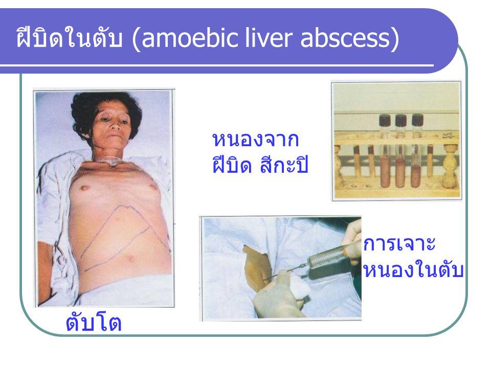 ฝีบิดในตับ (amoebic liver abscess) ตับโต การเจาะ หนองในตับ หนองจาก ฝีบิด สีกะปิ
