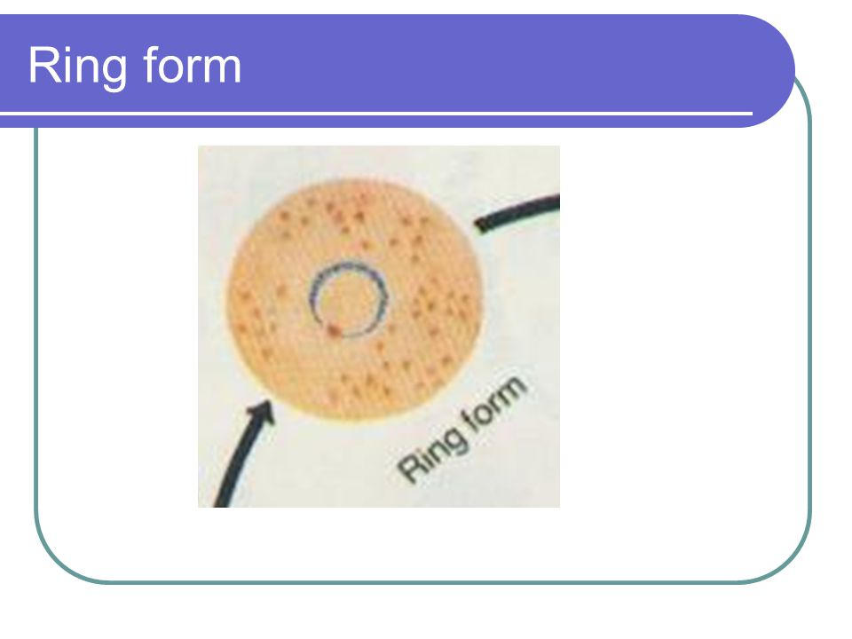 Ring form