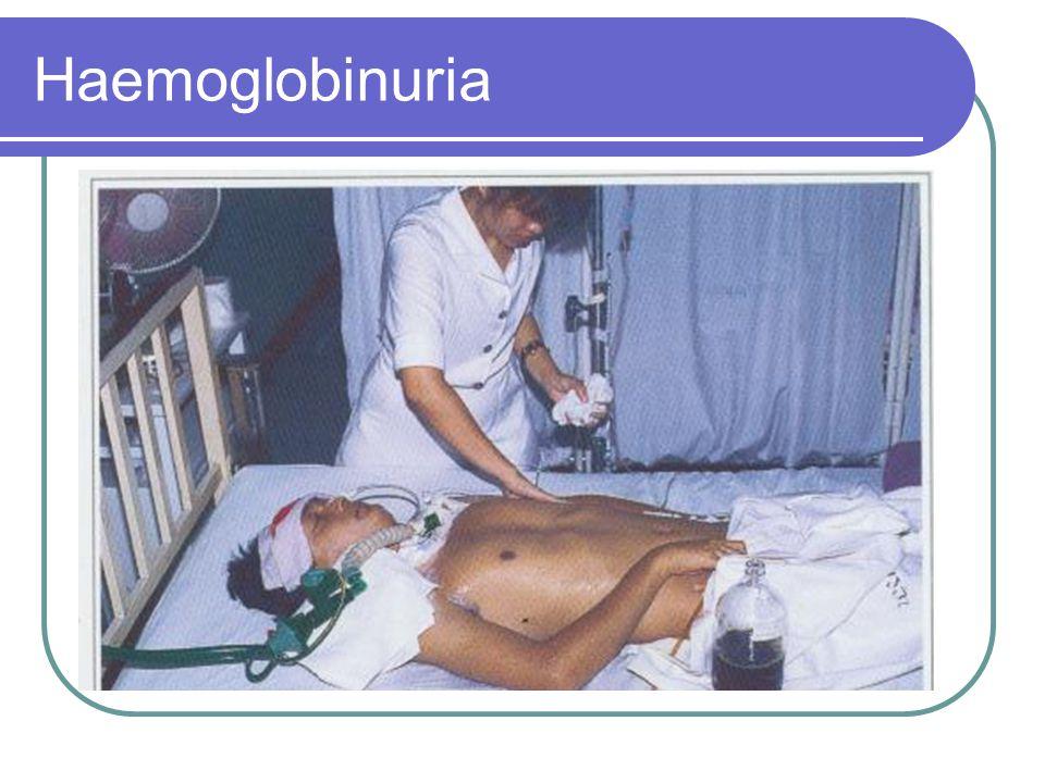 Haemoglobinuria