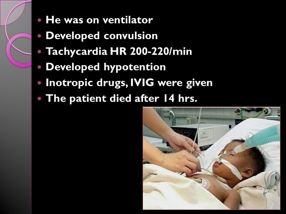 He was on ventilator Developed convulsion Tachycardia HR 200-220/min Developed hypotention Inotropic drugs, IVIG were given The patient died after 14 hrs.