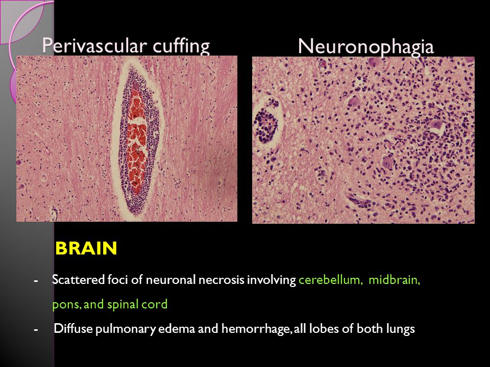 Perivascular cuffing BRAIN -Scattered foci of neuronal necrosis involving cerebellum, midbrain, pons, and spinal cord - Diffuse pulmonary edema and hemorrhage, all lobes of both lungs Neuronophagia