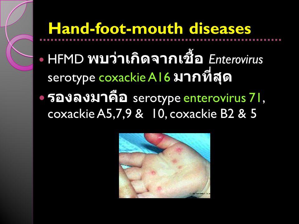 Hand-foot-mouth diseases HFMD พบว่าเกิดจากเชื้อ Enterovirus serotype coxackie A16 มากที่สุด รองลงมาคือ serotype enterovirus 71, coxackie A5,7,9 & 10,