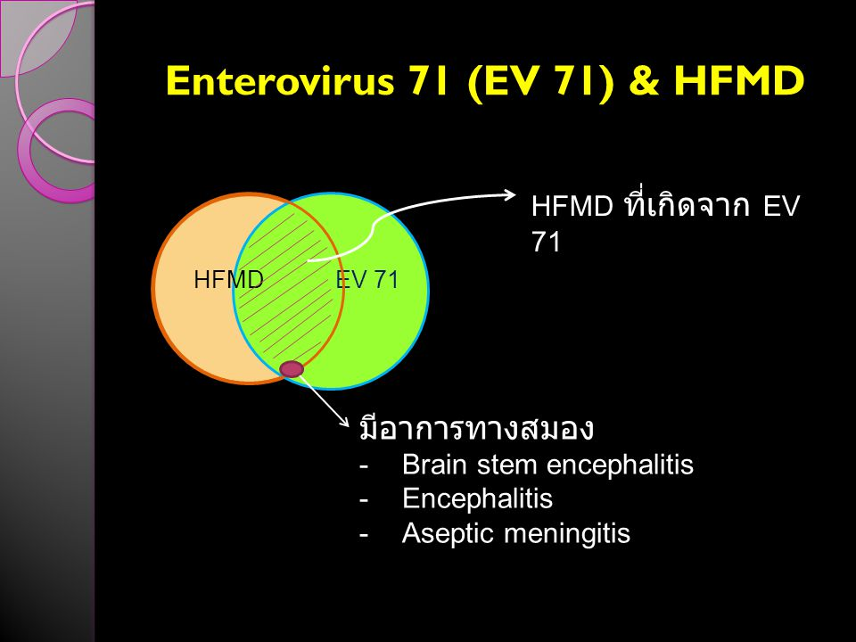 Enterovirus 71 (EV 71) & HFMD HFMDEV 71 HFMD ที่เกิดจาก EV 71 มีอาการทางสมอง -Brain stem encephalitis -Encephalitis -Aseptic meningitis