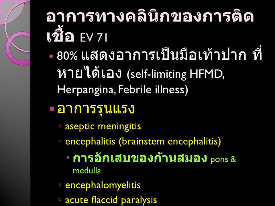 อาการทางคลินิกของการติด เชื้อ EV 71 80% แสดงอาการเป็นมือเท้าปาก ที่ หายได้เอง (self-limiting HFMD, Herpangina, Febrile illness) อาการรุนแรง ◦ aseptic