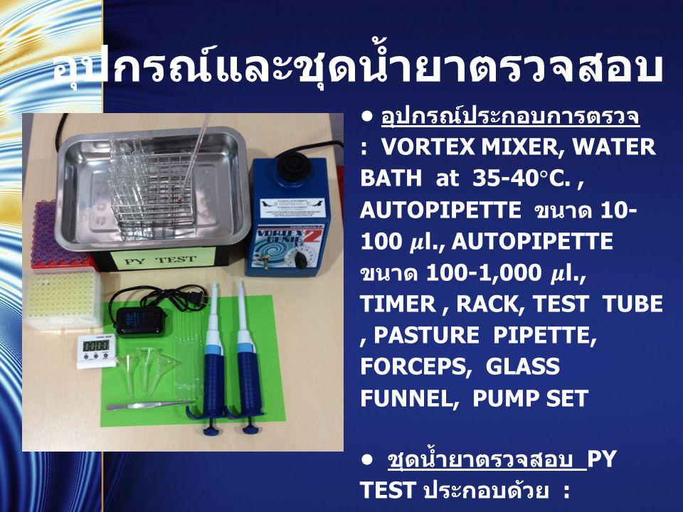อุปกรณ์และชุดน้ำยาตรวจสอบ อุปกรณ์ประกอบการตรวจ : VORTEX MIXER, WATER BATH at 35-40  C., AUTOPIPETTE ขนาด 10- 100 l., AUTOPIPETTE ขนาด 100-1,000 l., T