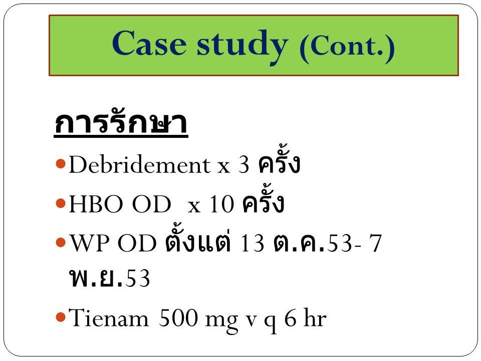 Case study (Cont.) การรักษา Debridement x 3 ครั้ง HBO OD x 10 ครั้ง WP OD ตั้งแต่ 13 ต. ค.53- 7 พ. ย.53 Tienam 500 mg v q 6 hr