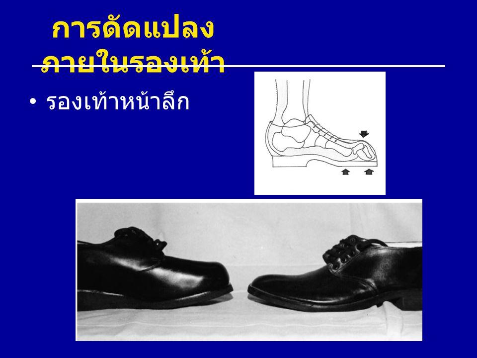การดัดแปลง ภายในรองเท้า รองเท้าหน้าลึก