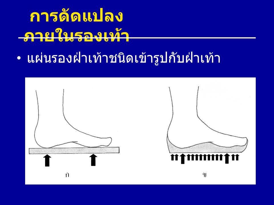 การดัดแปลง ภายในรองเท้า แผ่นรองฝ่าเท้าชนิดเข้ารูปกับฝ่าเท้า