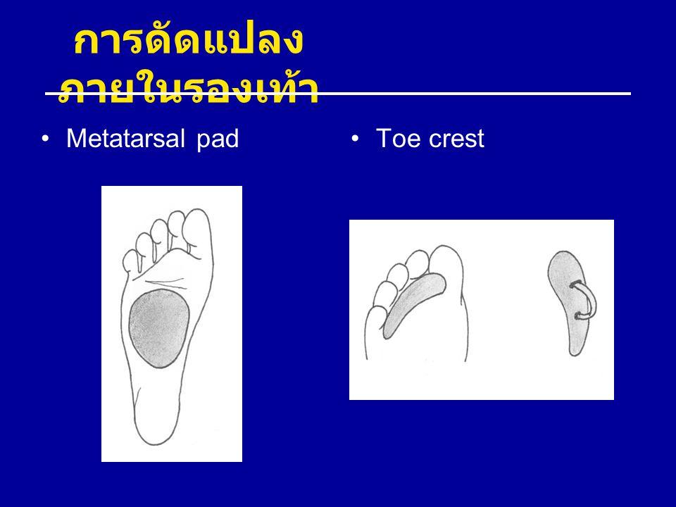 การดัดแปลง ภายในรองเท้า Metatarsal padToe crest