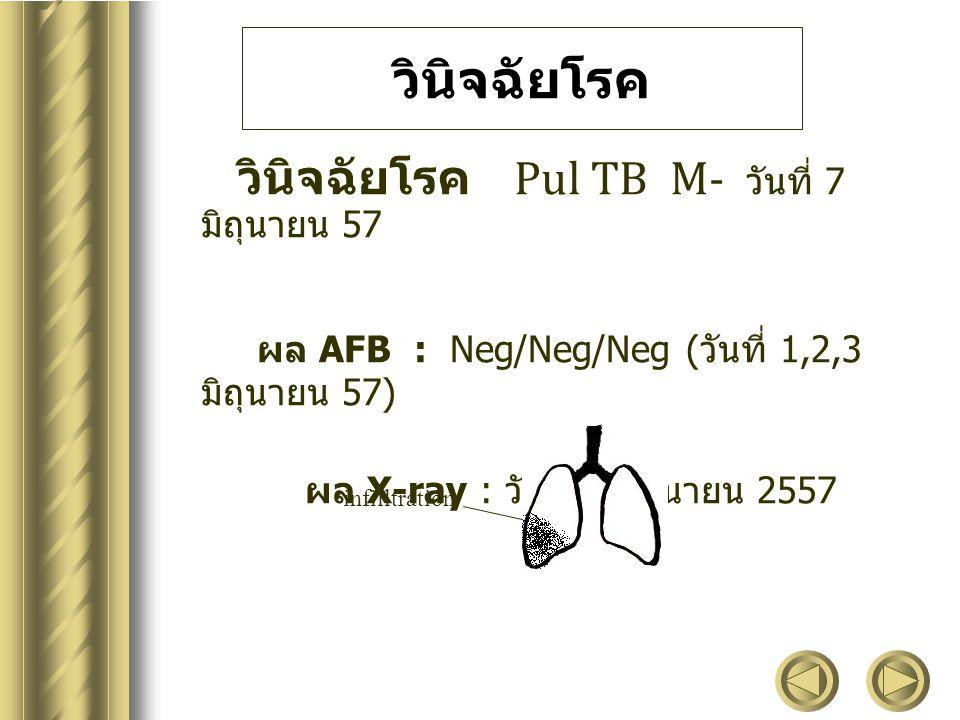 วินิจฉัยโรค วินิจฉัยโรค Pul TB M- วันที่ 7 มิถุนายน 57 ผล AFB : Neg/Neg/Neg ( วันที่ 1,2,3 มิถุนายน 57) ผล X-ray : วันที่ 2 มิถุนายน 2557 infilltratio