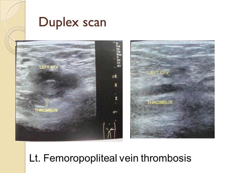 Duplex scan Lt. Femoropopliteal vein thrombosis