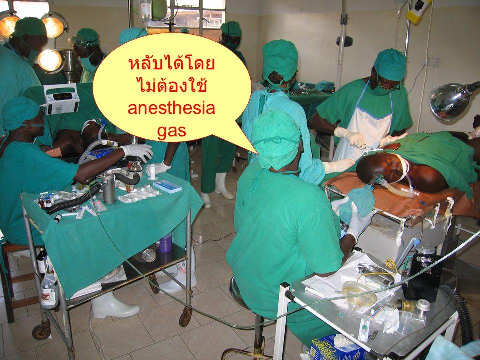 หลับได้โดย ไม่ต้องใช้ anesthesia gas