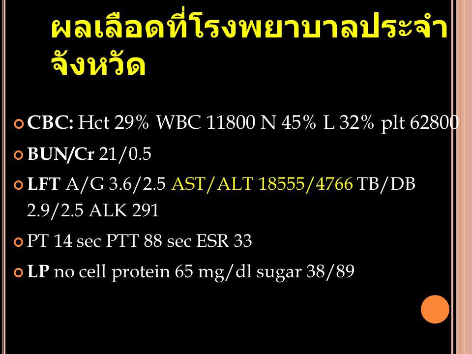 ผลเลือดที่โรงพยาบาลประจำ จังหวัด CBC: Hct 29% WBC 11800 N 45% L 32% plt 62800 BUN/Cr 21/0.5 LFT A/G 3.6/2.5 AST/ALT 18555/4766 TB/DB 2.9/2.5 ALK 291 P