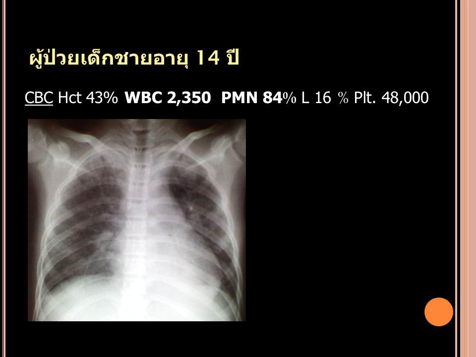 ผู้ป่วยเด็กชายอายุ 14 ปี CBC Hct 43% WBC 2,350 PMN 84 % L 16 % Plt. 48,000