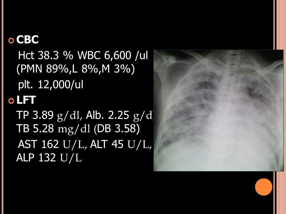 CBC Hct 38.3 % WBC 6,600 /ul (PMN 89%,L 8%,M 3%) plt. 12,000/ul LFT TP 3.89 g/dl, Alb. 2.25 g/dl, TB 5.28 mg/dl ( DB 3.58) AST 162 U/L, ALT 45 U/L, AL