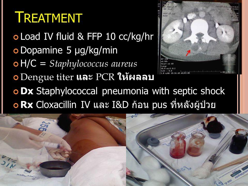 T REATMENT Load IV fluid & FFP 10 cc/kg/hr Dopamine 5 µg/kg/min H/C = Staphylococcus aureus Dengue titer และ PCR ให้ผลลบ Dx Staphylococcal pneumonia w