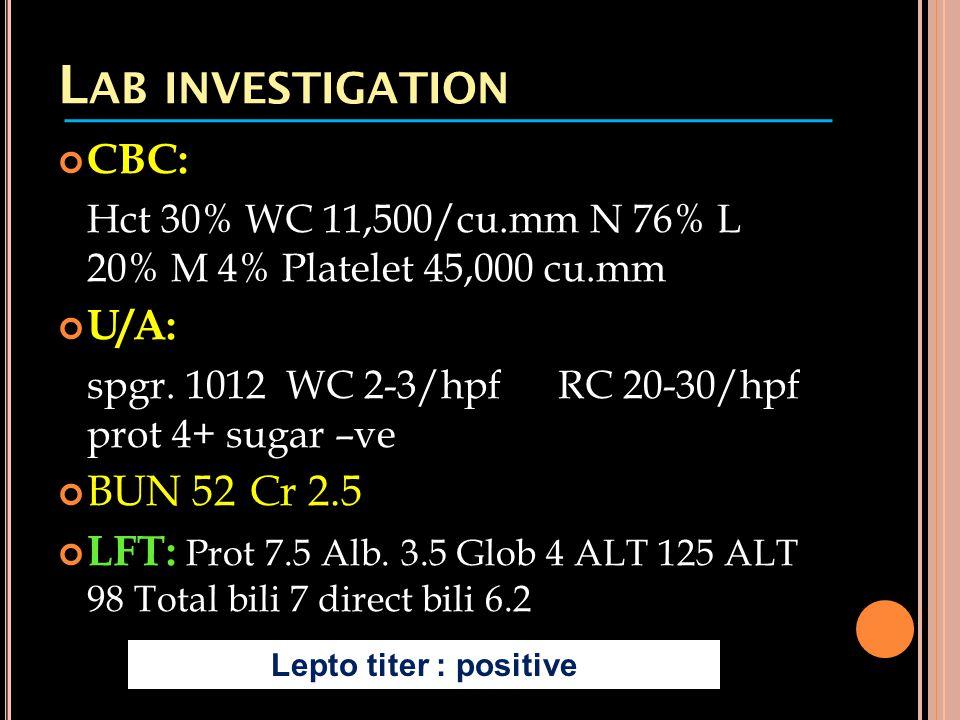 L AB INVESTIGATION CBC: Hct 30% WC 11,500/cu.mm N 76% L 20% M 4% Platelet 45,000 cu.mm U/A: spgr. 1012 WC 2-3/hpf RC 20-30/hpf prot 4+ sugar –ve BUN 5