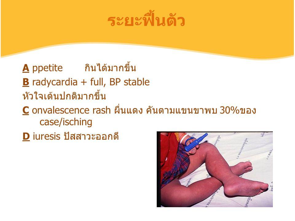 A ppetite กินได้มากขึ้น B radycardia + full, BP stable หัวใจเต้นปกติมากขึ้น C onvalescence rash ผื่นแดง คันตามแขนขาพบ 30%ของ case/isching D iuresis ปั