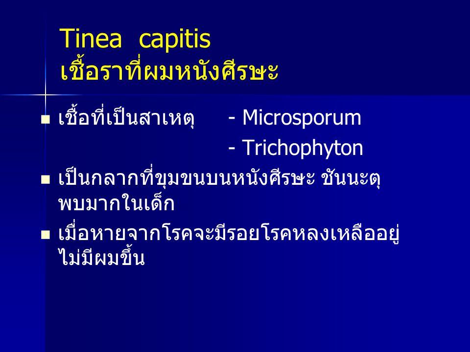 Tinea capitis เชื้อราที่ผมหนังศีรษะ เชื้อที่เป็นสาเหตุ - Microsporum - Trichophyton เป็นกลากที่ขุมขนบนหนังศีรษะ ชันนะตุ พบมากในเด็ก เมื่อหายจากโรคจะมี