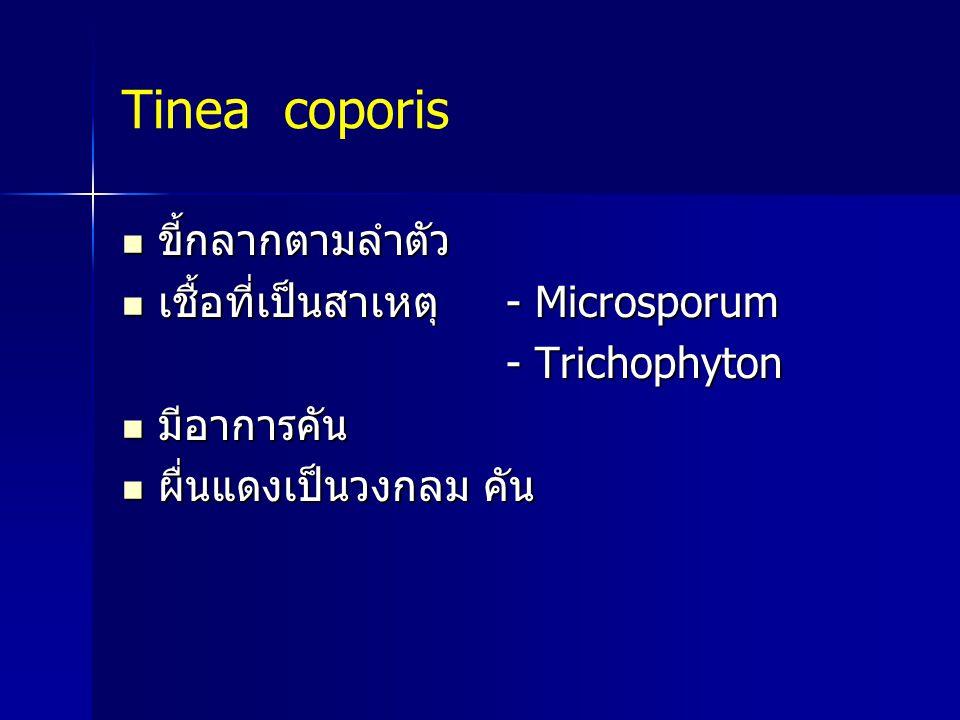 Tinea coporis ขี้กลากตามลำตัว ขี้กลากตามลำตัว เชื้อที่เป็นสาเหตุ - Microsporum เชื้อที่เป็นสาเหตุ - Microsporum - Trichophyton - Trichophyton มีอาการค