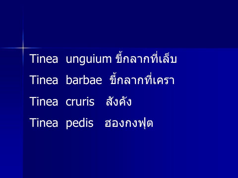 Tinea unguium ขี้กลากที่เล็บ Tinea barbae ขี้กลากที่เครา Tinea cruris สังคัง Tinea pedis ฮองกงฟุต
