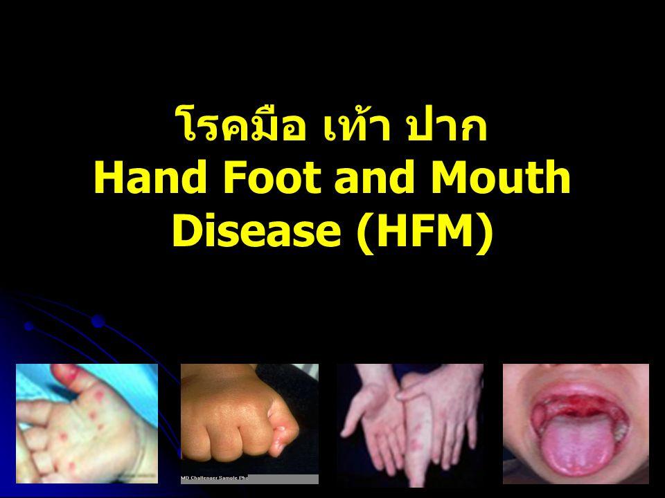 โรคมือ เท้า ปาก Hand Foot and Mouth Disease (HFM)