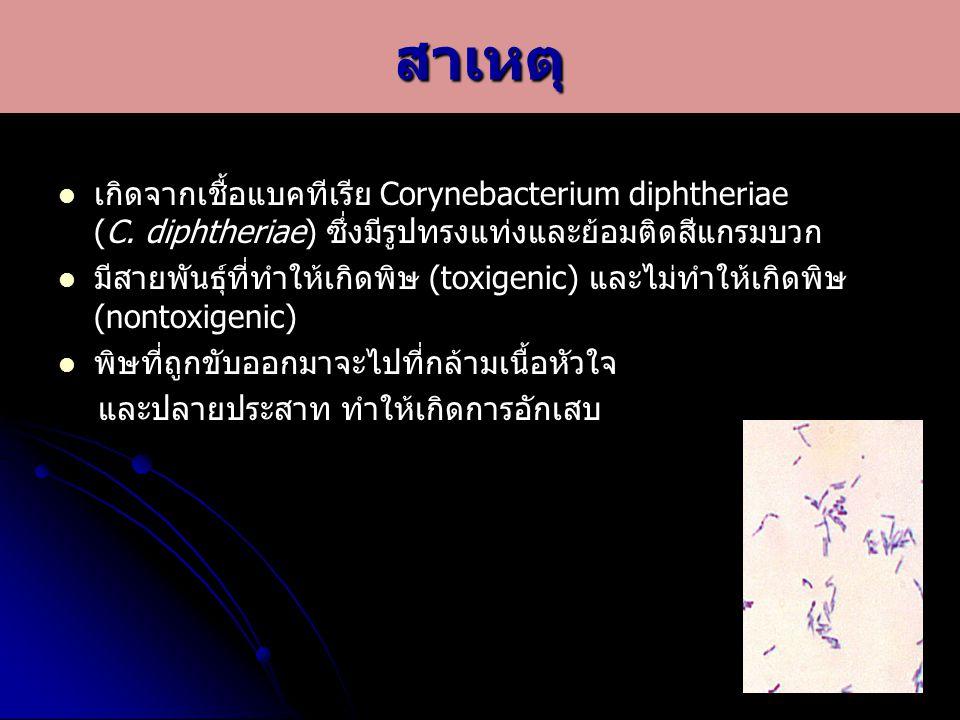 เกิดจากเชื้อแบคทีเรีย Corynebacterium diphtheriae (C. diphtheriae) ซึ่งมีรูปทรงแท่งและย้อมติดสีแกรมบวก มีสายพันธุ์ที่ทำให้เกิดพิษ (toxigenic) และไม่ทำ
