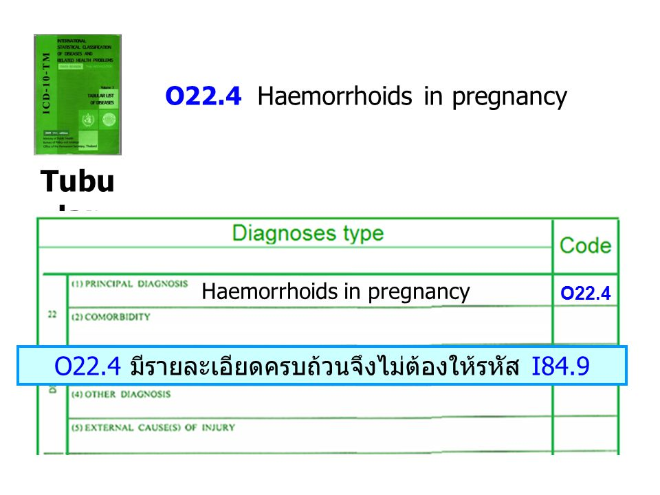 Tubu lar O22.4 Haemorrhoids in pregnancy Haemorrhoids in pregnancy O22.4 O22.4 มีรายละเอียดครบถ้วนจึงไม่ต้องให้รหัส I84.9