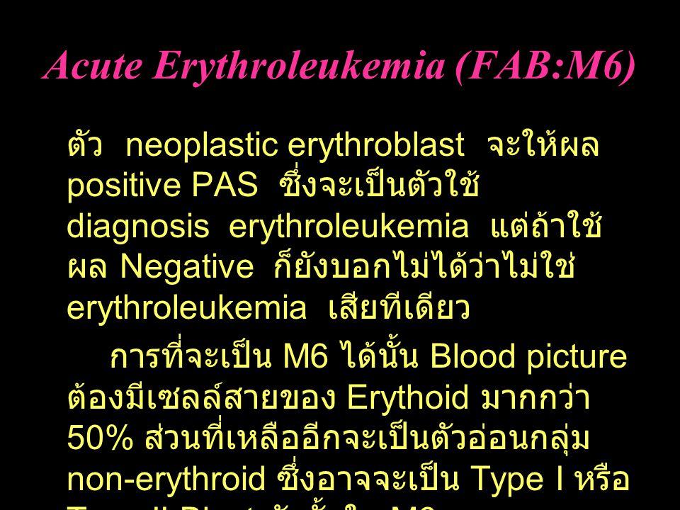 Acute Erythroleukemia (FAB:M6) ตัว neoplastic erythroblast จะให้ผล positive PAS ซึ่งจะเป็นตัวใช้ diagnosis erythroleukemia แต่ถ้าใช้ ผล Negative ก็ยังบอกไม่ได้ว่าไม่ใช่ erythroleukemia เสียทีเดียว การที่จะเป็น M6 ได้นั้น Blood picture ต้องมีเซลล์สายของ Erythoid มากกว่า 50% ส่วนที่เหลืออีกจะเป็นตัวอ่อนกลุ่ม non-erythroid ซึ่งอาจจะเป็น Type I หรือ Type II Blast ดังนั้นใน M6 จะไม่ได้พบแต่สาย Erythroid