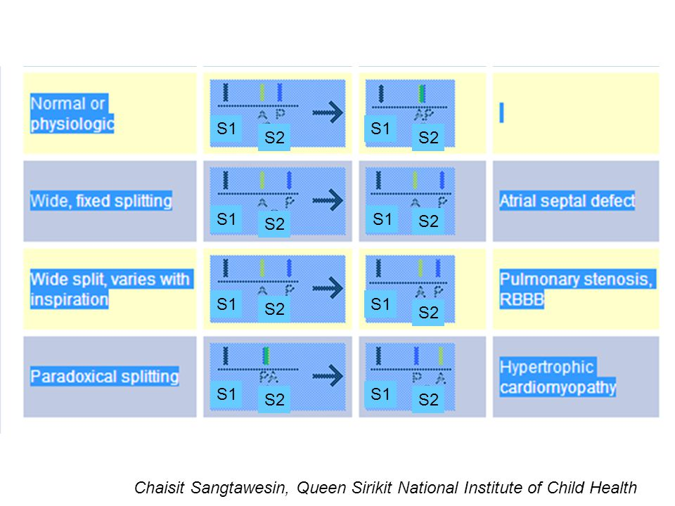 S1 S2 Chaisit Sangtawesin, Queen Sirikit National Institute of Child Health