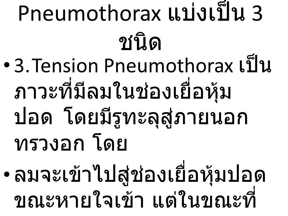 Pneumothorax แบ่งเป็น 3 ชนิด 3.Tension Pneumothorax เป็น ภาวะที่มีลมในช่องเยื่อหุ้ม ปอด โดยมีรูทะลุสู่ภายนอก ทรวงอก โดย ลมจะเข้าไปสู่ช่องเยื่อหุ้มปอด ขณะหายใจเข้า แต่ในขณะที่ หายใจออกลมไม่สามารถออก สู่ภายนอกได้