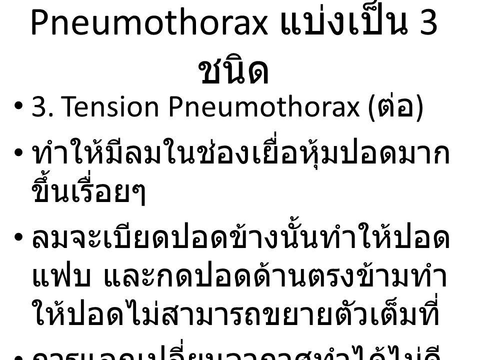 Pneumothorax แบ่งเป็น 3 ชนิด 3.Tension Pneumothorax ( ต่อ ) ทำให้มีลมในช่องเยื่อหุ้มปอดมาก ขึ้นเรื่อยๆ ลมจะเบียดปอดข้างนั้นทำให้ปอด แฟบ และกดปอดด้านตรงข้ามทำ ให้ปอดไม่สามารถขยายตัวเต็มที่ การแลกเปลี่ยนอากาศทำได้ไม่ดี เป็นอันตรายถึงแก่ชีวิตได้