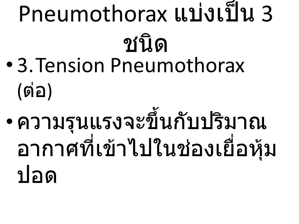 3.Tension Pneumothorax ( ต่อ ) ความรุนแรงจะขึ้นกับปริมาณ อากาศที่เข้าไปในช่องเยื่อหุ้ม ปอด Pneumothorax แบ่งเป็น 3 ชนิด