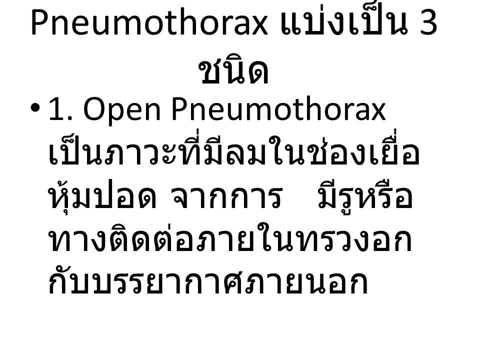 Pneumothorax แบ่งเป็น 3 ชนิด 1.